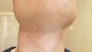 Besonders am Hals lässt sich der Minoxidil Bart vorher nachher Vergleich ziehen!