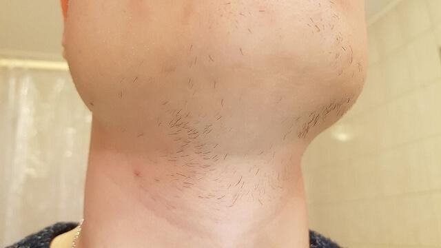 Minoxidil Bartwuchs Erfahrungen