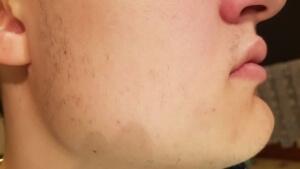 Mein Bartwuchs vor Minoxidil war mehr als spärlich
