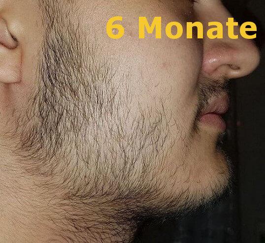 Bartwuchs erfahrungen minoxidil Minoxidil Haarausfall?
